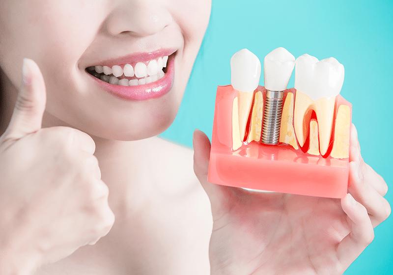 İmplant ve Diş Tedavisi
